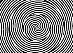 dizziness-vertigo